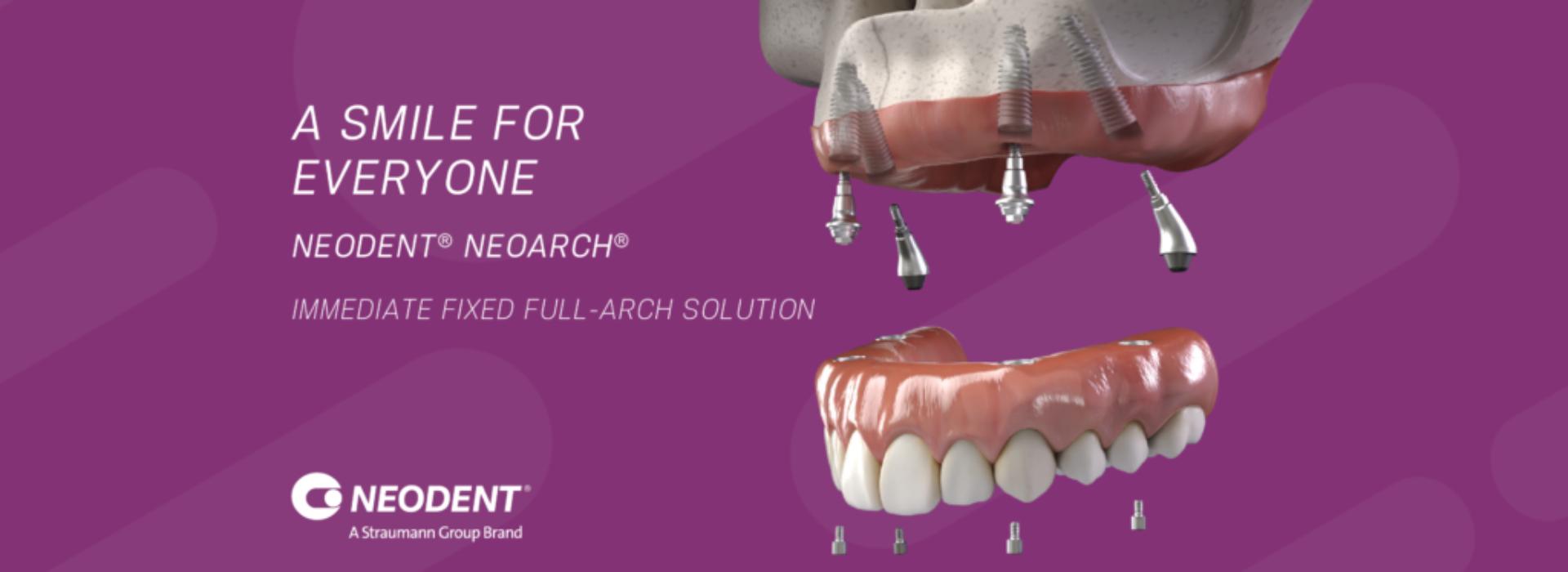 Neodent Dental Implant